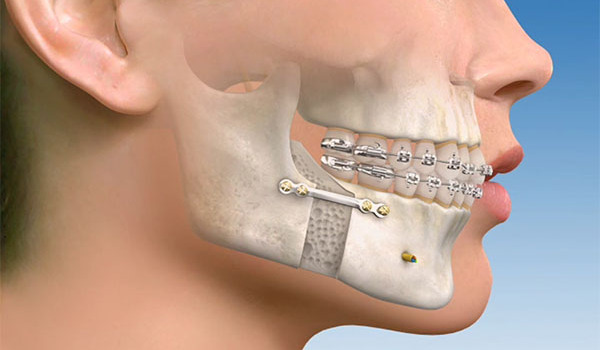 Взаимодействие кости и имплантата